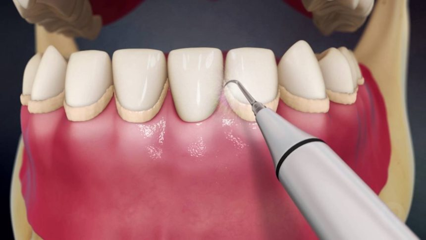 An image of the tip of an ultrasonic scaler for teeth cleanings.