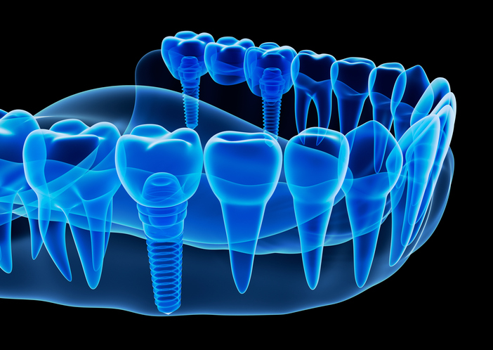 image of Dental Implants Phoenix, AZ