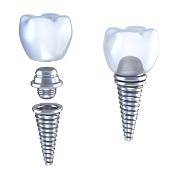 Graphic representation of a dental implant with the titanium screw