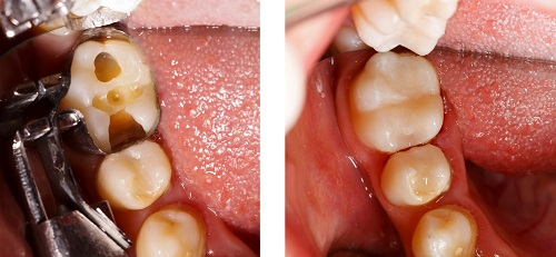 Image of a before and after image of a tooth that has a cavity and the after showing the tooth filled with composite resin